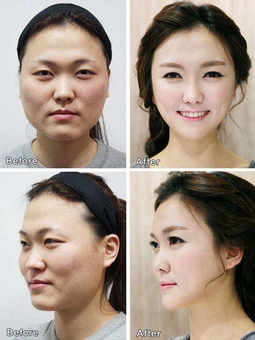cirugía1