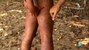 rebeca-mosquitos1