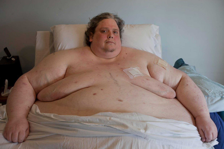 hombre más gordo7