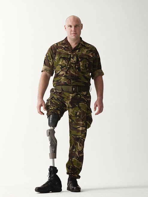 soldados-heridos10