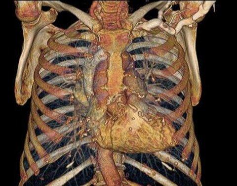 cuerpo-humano4