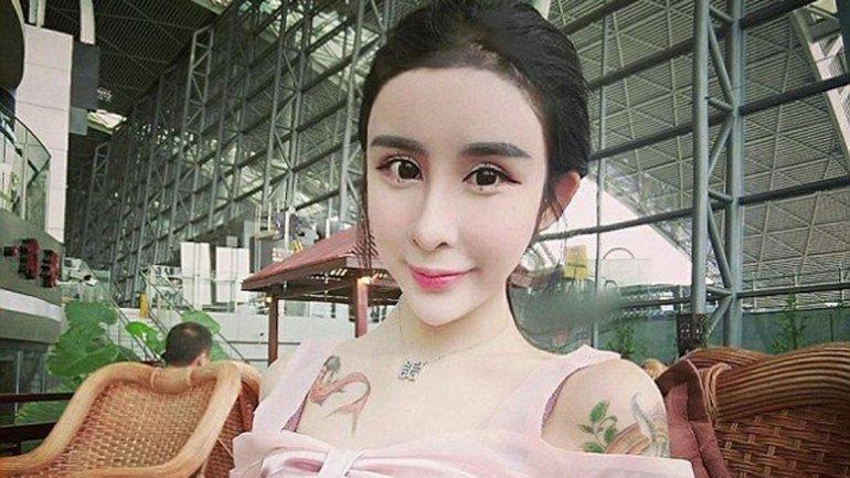 Lee Hee Dane china cirugías 1