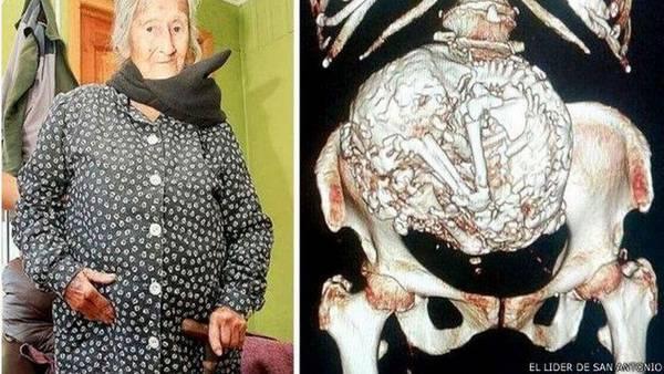 anciana-feto-momificado