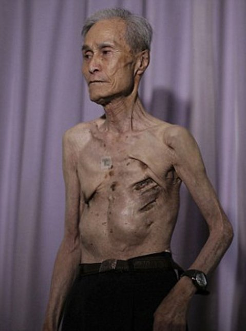 sobreviviente Nagasaki (3)