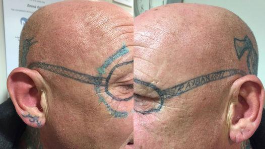 Luego-borrachera-despierta-tatuaje-cara_CLAIMA20151104_0091_39