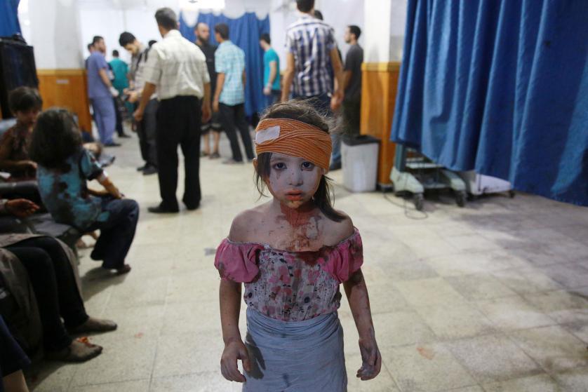 Una nena siria herida en un hospital improvisado en la ciudad de Damasco
