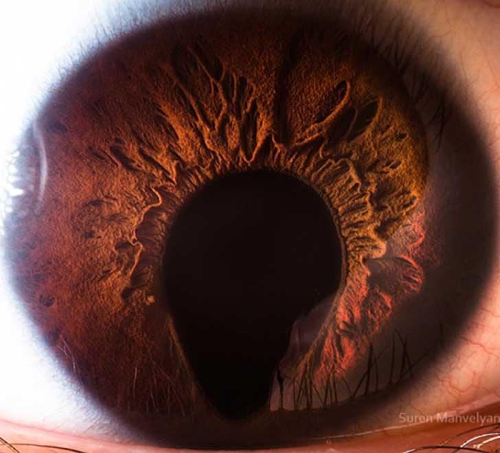 ojos (13)