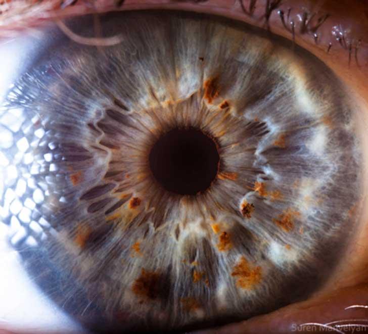 ojos (2)