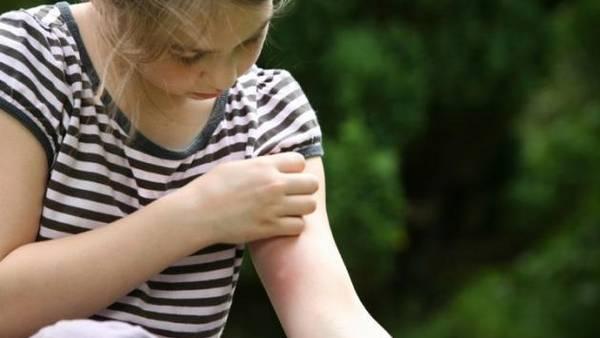 picaduras-mosquitos