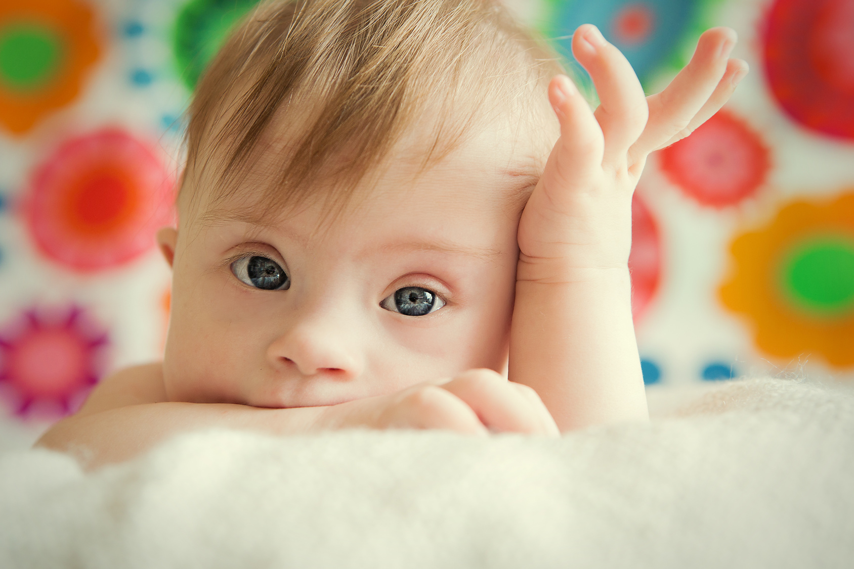 cheerful little baby girl with Downs Syndrome