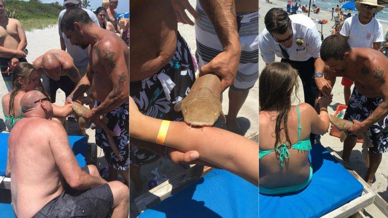tiburón brazo5