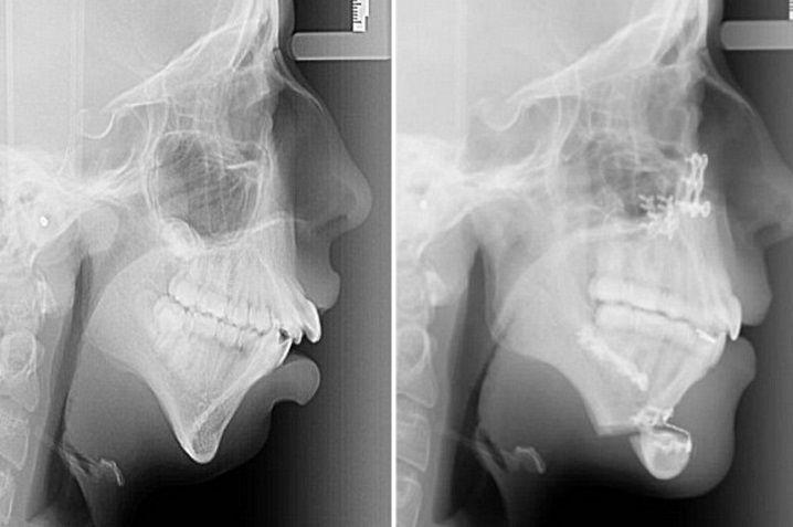 operacion mandibula1