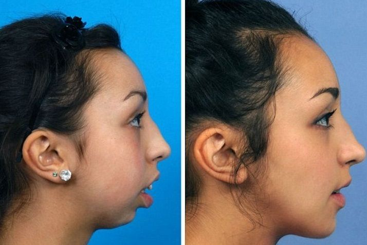 operacion mandibula2