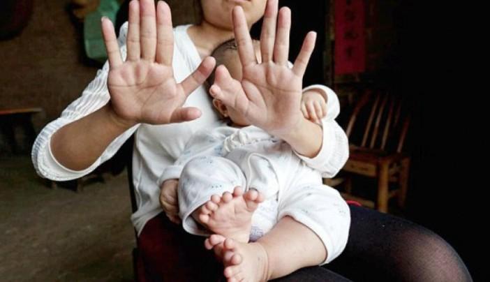 31 dedos1