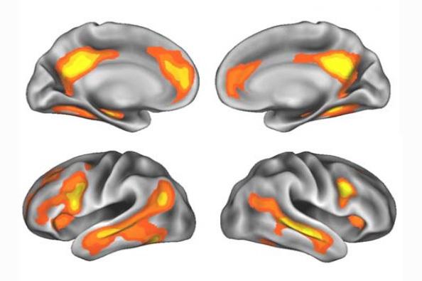 Las regiones cerebrales con cambios de volumen después del embarazo