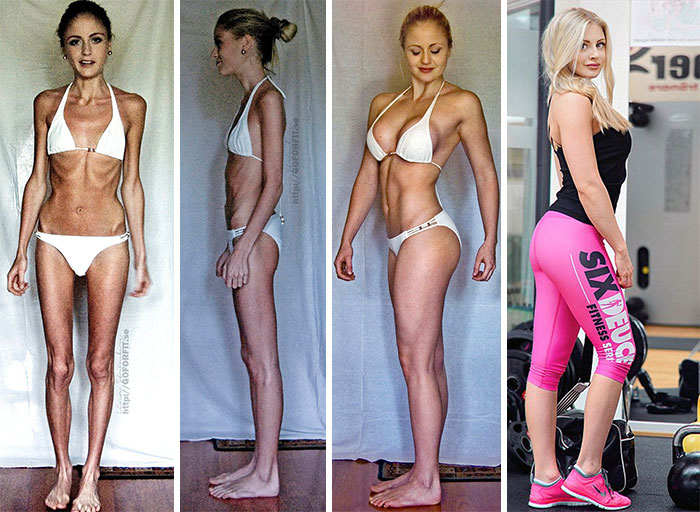 anorexia-recovery-before-after-111-58f60de428d6d__700