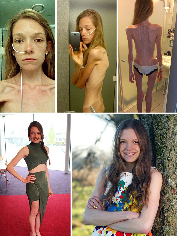 anorexia-recovery-before-after-130-58f7209c5d1f7__700