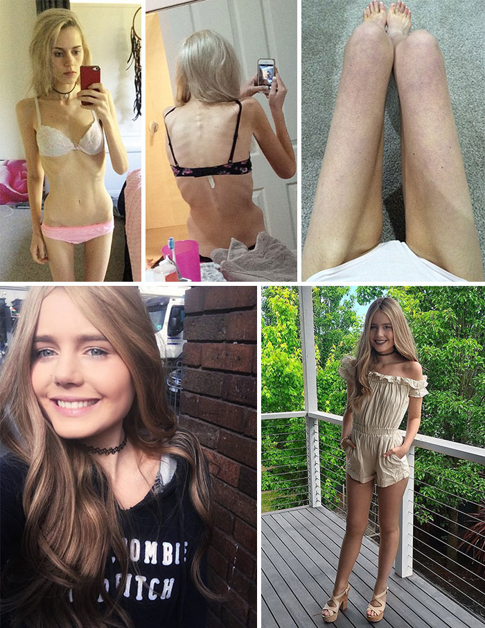 anorexia-recovery-before-after-139-58f7ada9e0418__700