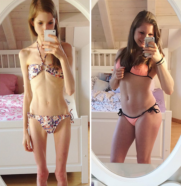 anorexia-recovery-before-after-195-59100917d9eb6__700