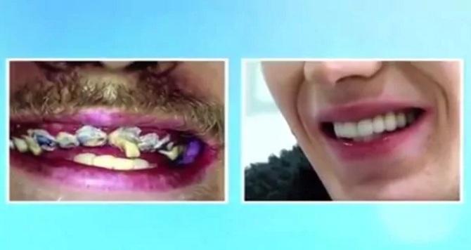 Reconstruccion-dental-1920-15