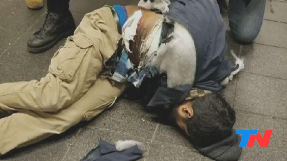 El atacante, herido tras la explosión