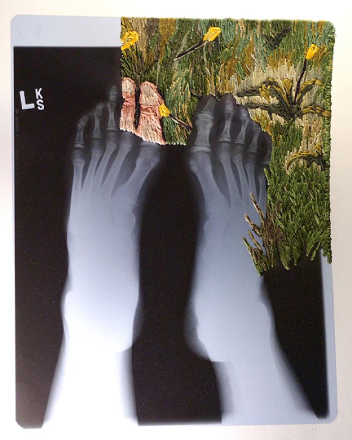 This-artist-creates-incredible-boraddos-on-medical-x-rays-5a3ae424baf20__700