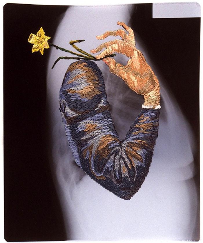 This-artist-creates-incredible-boraddos-on-medical-x-rays-5a3ae436b8490__700