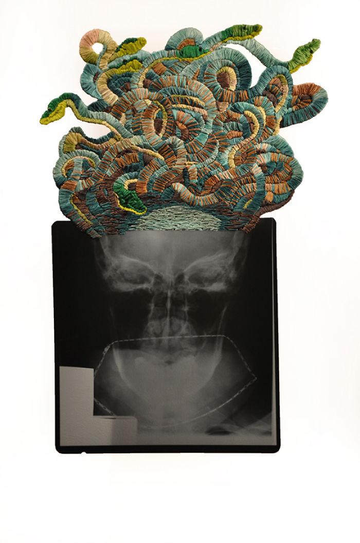 This-artist-creates-incredible-boraddos-on-medical-x-rays-5a3ae43d8ea99__700
