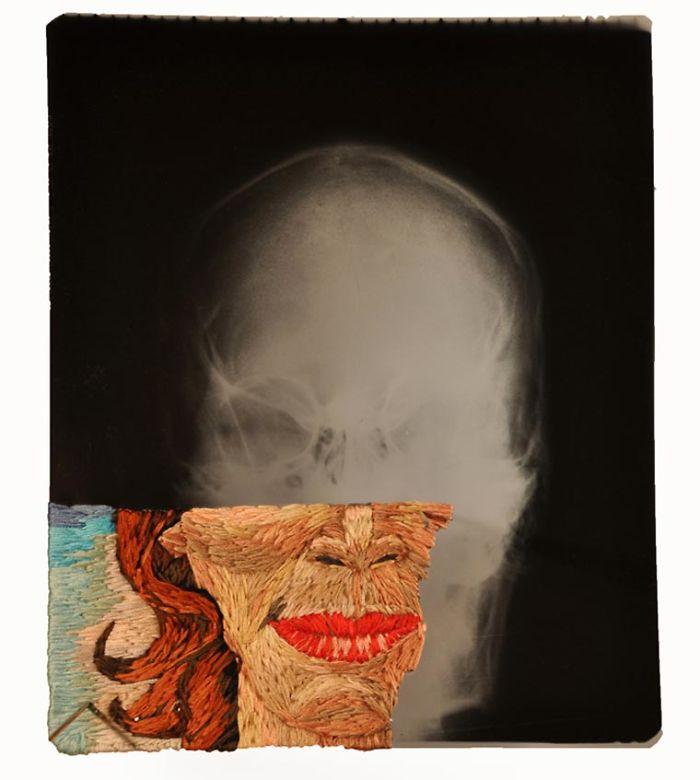This-artist-creates-incredible-boraddos-on-medical-x-rays-5a3ae44cbd905__700