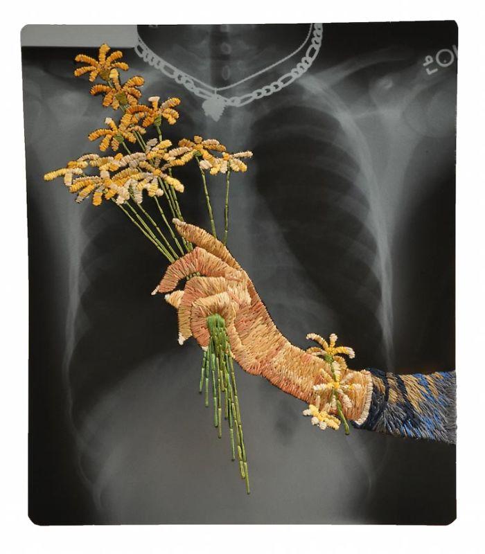 This-artist-creates-incredible-boraddos-on-medical-x-rays-5a3ae45008328__700