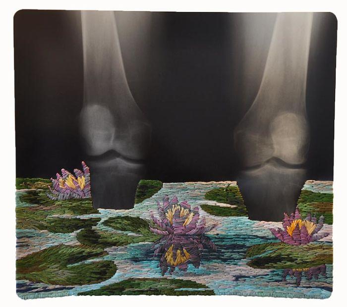 This-artist-creates-incredible-boraddos-on-medical-x-rays-5a3ae45b054d9__700