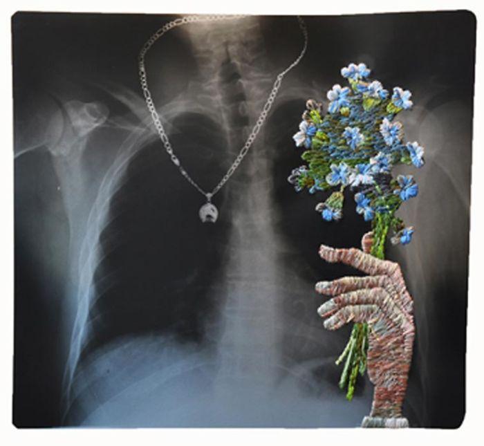 This-artist-creates-incredible-boraddos-on-medical-x-rays-5a3ae46da25c2__700