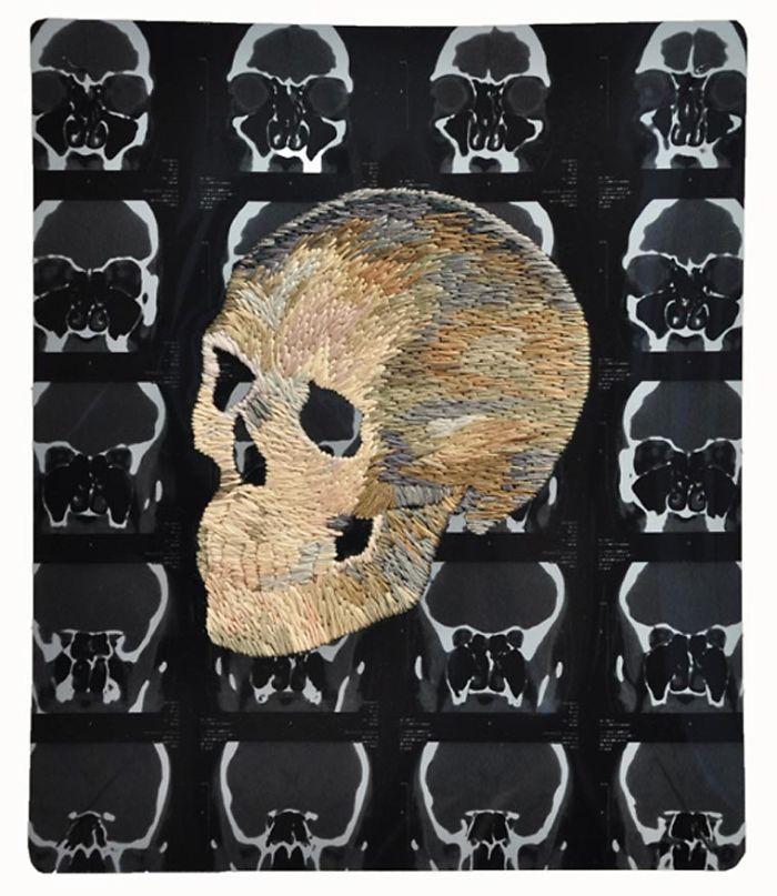 This-artist-creates-incredible-boraddos-on-medical-x-rays-5a3ae47052f91__700