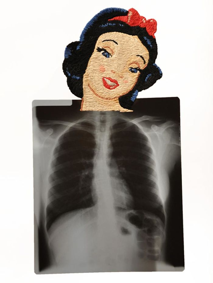 This-artist-creates-incredible-boraddos-on-medical-x-rays-5a3ae472b5a9b__700