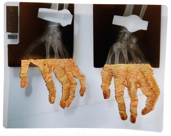This-artist-creates-incredible-boraddos-on-medical-x-rays-5a3ae47ad789b__700