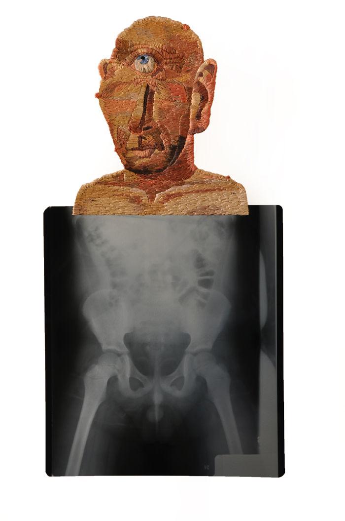 This-artist-creates-incredible-boraddos-on-medical-x-rays-5a3b7dfec98f4__700