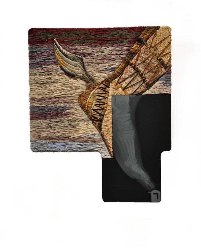 This-artist-creates-incredible-boraddos-on-medical-x-rays-5a3b7f0a14f66__700