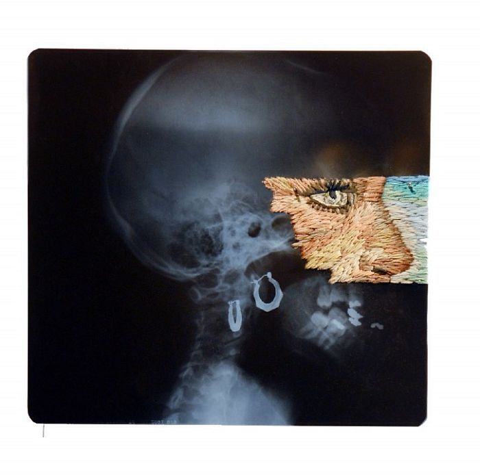This-artist-creates-incredible-boraddos-on-medical-x-rays-5a3b7f0fb80ff__700