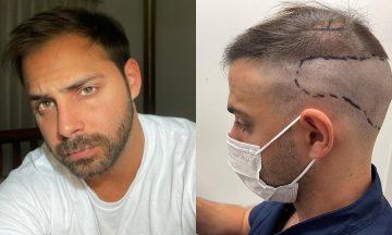 """La reflexión de Grego Rosello tras realizarse un implante capilar: """"Lo ideal sería aceptarnos como somos"""""""